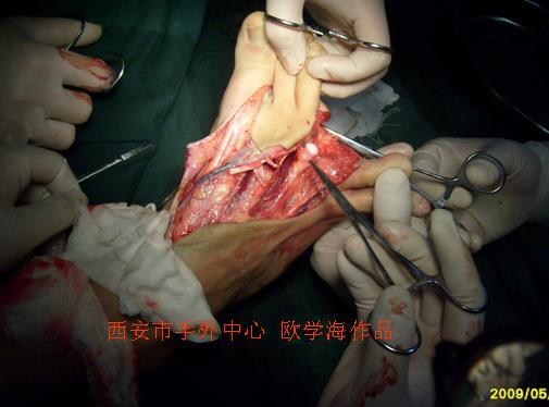 右足骨解剖结构图