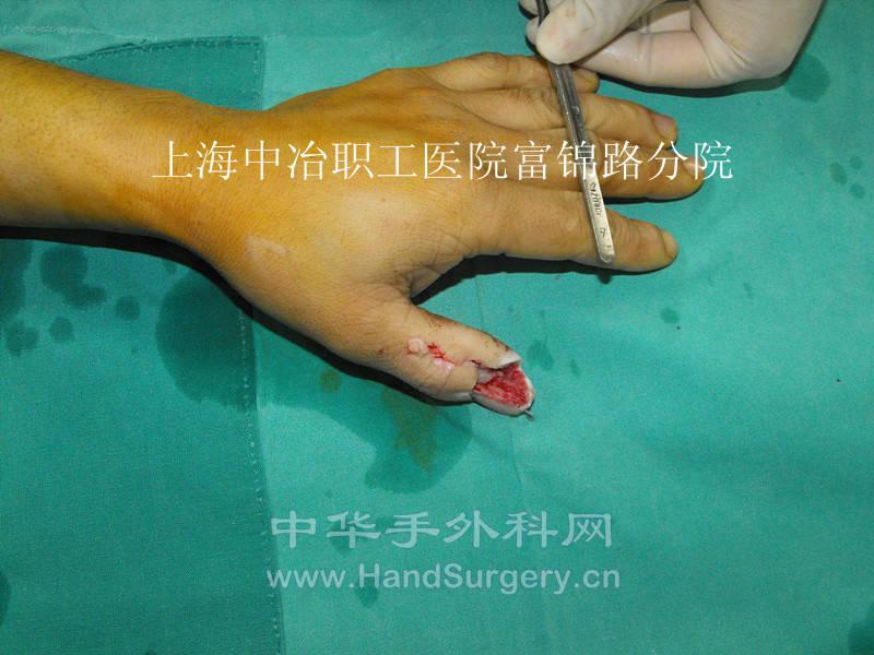 第一趾趾甲瓣 - 经典病例 - 中华手外科网 -