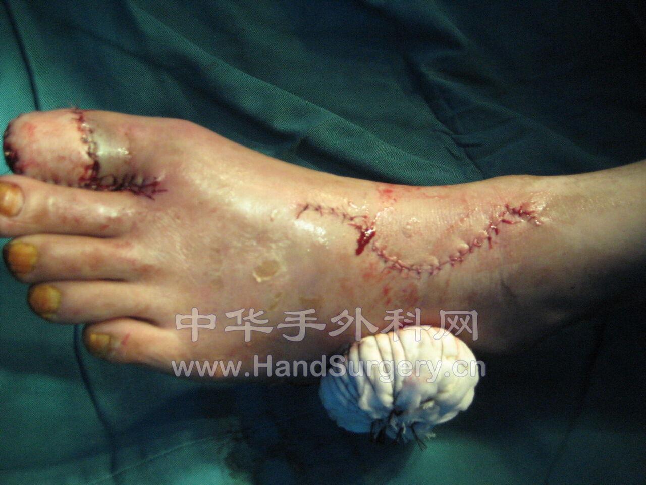 �[趾压砸伤后跗外侧皮瓣修复(模仿)。 - 经典病
